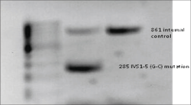 Figure 1: Gel picture showing IVS1-5 mutation by amplification refractory mutation system polymerase chain reaction
